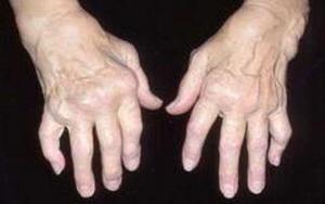 Артрит - причины болезни